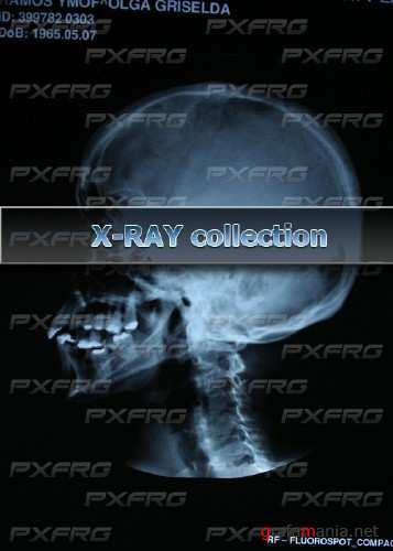HQ free x-ray collection