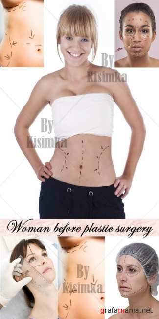 Stock Photo: Woman before plastic surgery