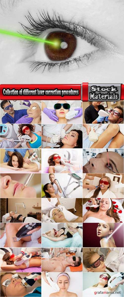 Collection of different laser correction procedures 25 HQ Jpeg