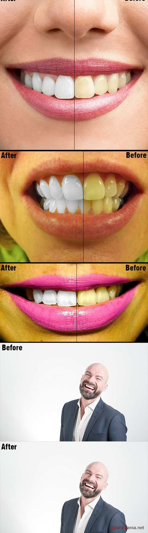 Teeth Whitening PS Action Photo Effects 20347431